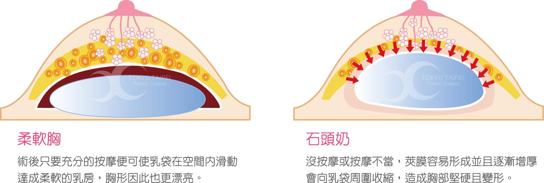 3D定制水滴形隆乳的優點與介紹