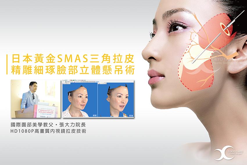 黃金SMAS三角拉皮整形手術