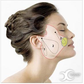 複合式雙層拉皮術