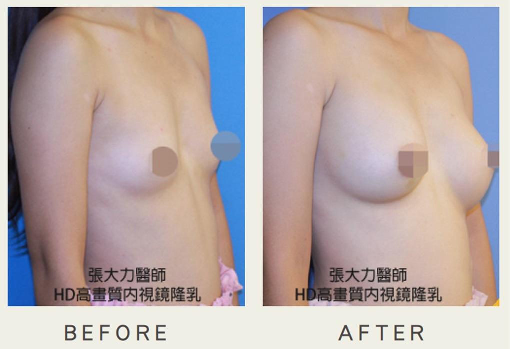 安全5D隆乳案例分享-東京風采整形
