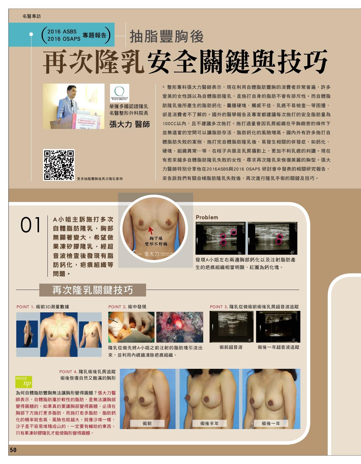 抽脂豐胸後 再次隆乳安全關鍵與技巧-雜誌專訪-張大力-整形名醫-東京風采
