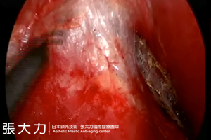 二次隆乳手術-東京風采整形