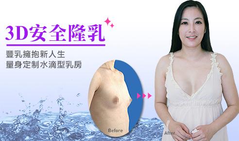 3D安全隆乳手術