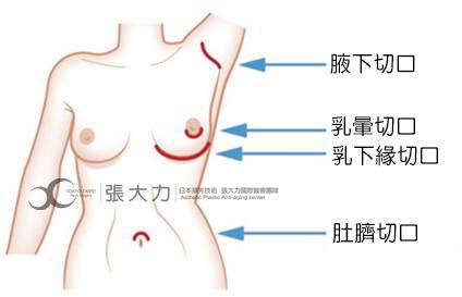 安全隆乳切口位置-東京風采整形