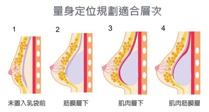 隆乳手術各部位-東京風采整形