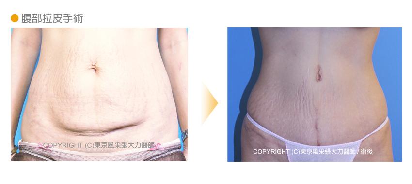 腹部拉皮整形手術前後-東京風采整形