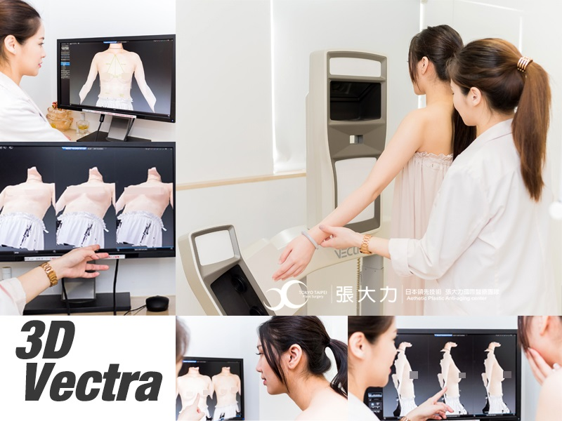 隆乳手術前檢測-東京風采整形外科診所