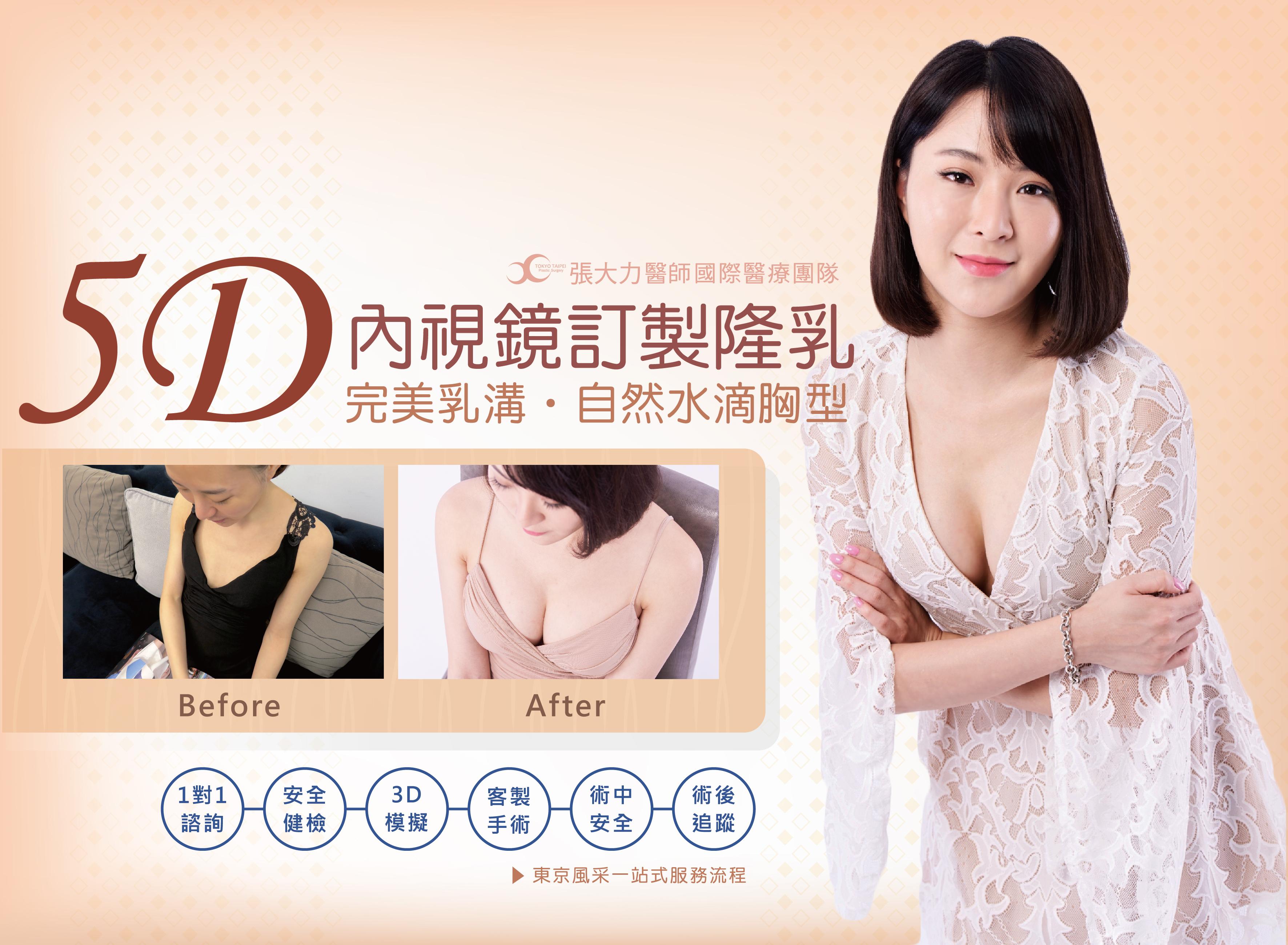 5D內視鏡訂製隆乳-東京風采