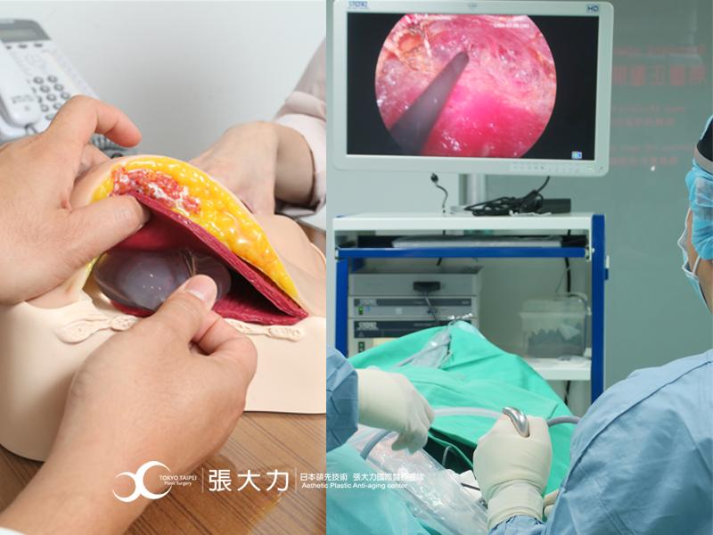 隆乳手術環境-東京風采整形外科診所