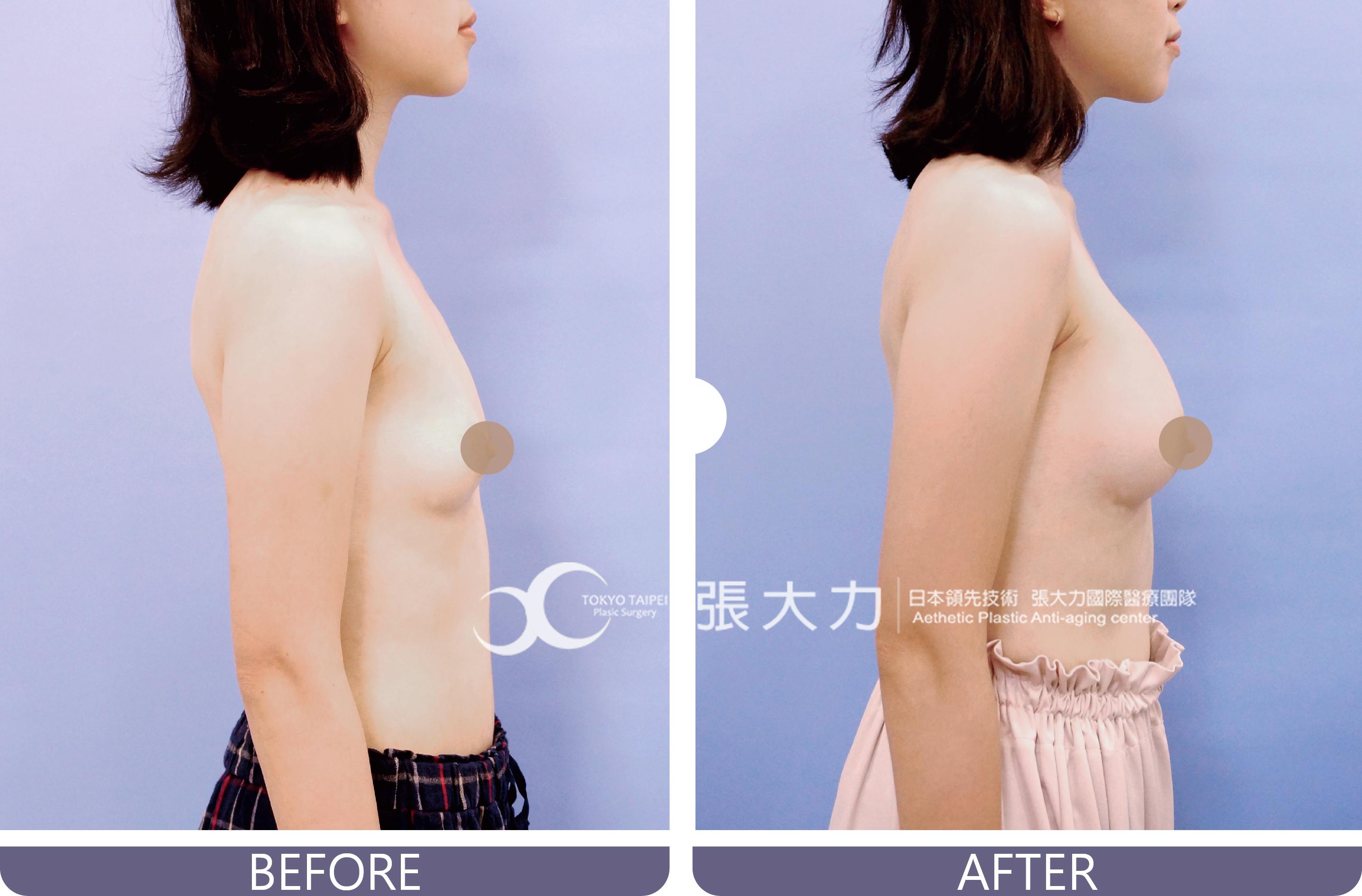 隆乳手術前後-東京風采整形外科診所