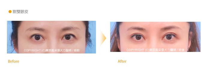 割雙眼皮手術前後-東京風采整形外科診所