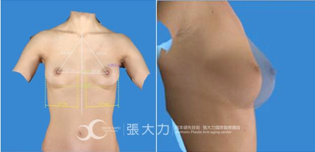 隆乳手術-東京風采整形外科診所