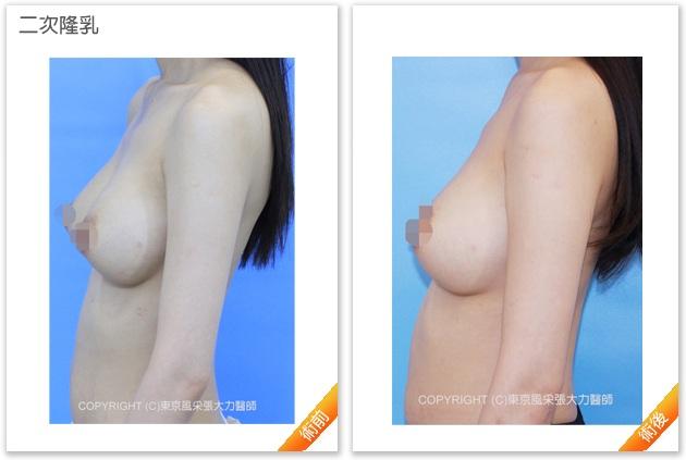 二次隆乳手術-東京風采整形外科診所