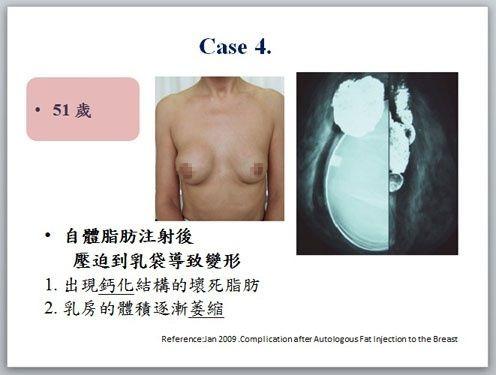 自體脂肪注射隆乳壓迫導致變形