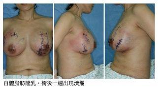 自體脂肪隆乳術後出現潰瘍-東京風采整形