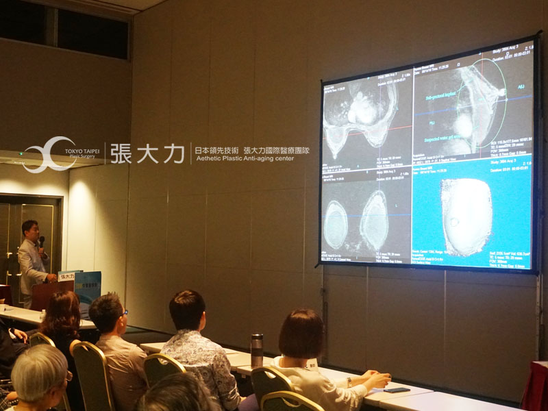 東京風采整形外科-張大力院長-2018中華醫學會-隆乳重建專題演講