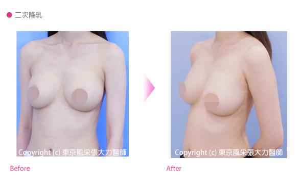 二次隆乳手術前後-東京風采整形外科診所
