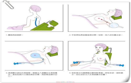 隆乳手術流程-東京風采整形外科診所