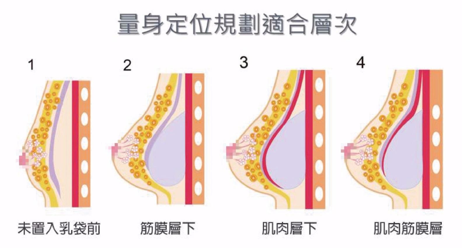 量身訂製打造好胸型-東京風采隆乳整形外科診所