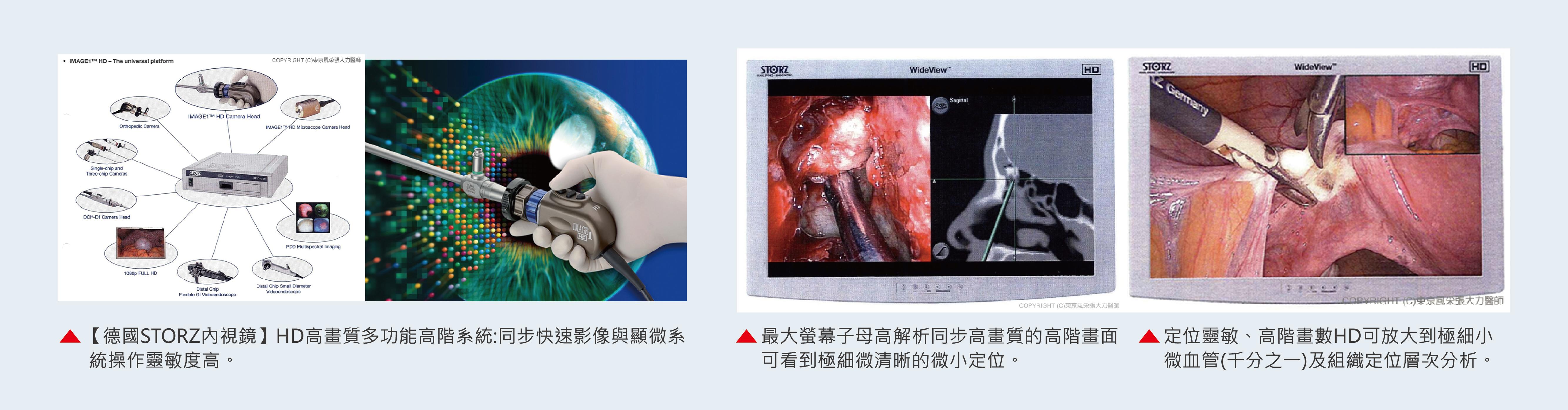 隆乳內視鏡介紹-東京風采整形外科診所